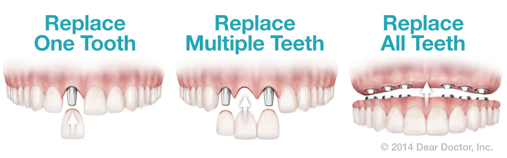 Dental Implant Replacement Options